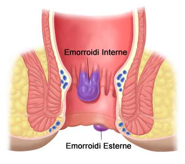 Emorroidi Interne ed Esterne