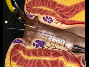 Ricostruzione 3D di un intervento Emorroidi