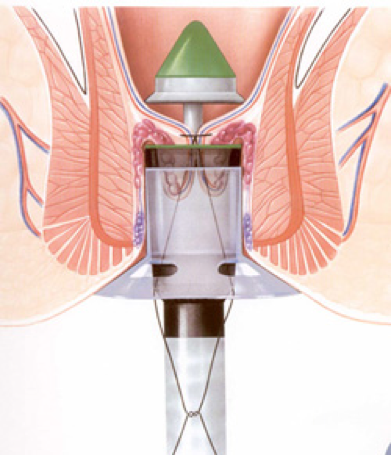 Emorroidopessia